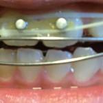 床矯正_子どもの歯に3つ目のボタンを付けました。