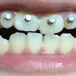床矯正_4つ目のボタンをつけた後ゴムで引っ張り、歯と歯の隙間をなくしました