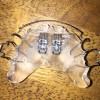 上顎の床矯正装置を新しく作り替えました